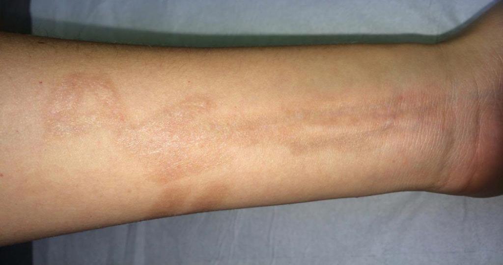 cicatrice avant bras